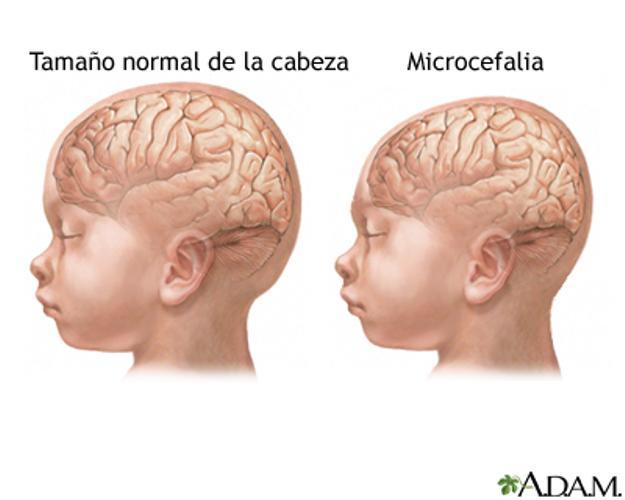 Confirman el primer caso de un bebé nacido con microcefalia por zika en Santa Fe