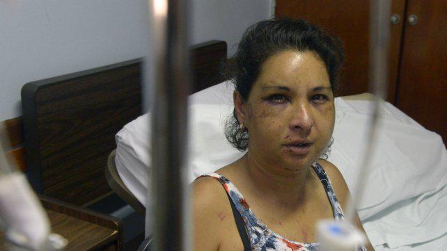 El desgarrador relato de una mujer que sufrió un brutal intento de femicidio